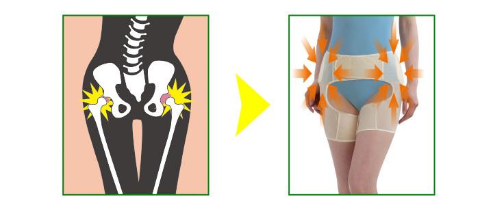 股関節を正しい位置にサポート